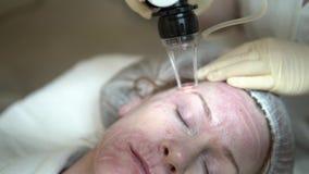 Του προσώπου δέρμα λέιζερ που ξαναέρχεται στην επιφάνεια σε μια ιατρική κλινική απόθεμα βίντεο