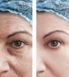 Του προσώπου μάτι ρυτίδων γυναικών που γερνά πριν και μετά από τις διαδικασίες στοκ εικόνα με δικαίωμα ελεύθερης χρήσης