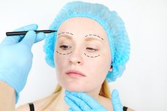Του προσώπου πλαστική χειρουργική ή λίφτινγκ, λίφτινγκ, διόρθωση προσώπου Ένας πλαστικός χειρούργος εξετάζει έναν ασθενή πριν από στοκ εικόνα