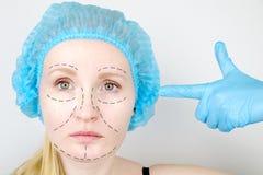 Του προσώπου πλαστική χειρουργική ή λίφτινγκ, λίφτινγκ, διόρθωση προσώπου Ένας πλαστικός χειρούργος εξετάζει έναν ασθενή πριν από στοκ φωτογραφία