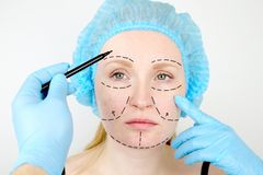 Του προσώπου πλαστική χειρουργική ή λίφτινγκ, λίφτινγκ, διόρθωση προσώπου Ένας πλαστικός χειρούργος εξετάζει έναν ασθενή πριν από στοκ φωτογραφία με δικαίωμα ελεύθερης χρήσης