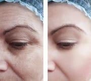 Του προσώπου ρυτίδες γυναικών που γερνούν πριν και μετά από τις διαδικασίες στοκ εικόνα με δικαίωμα ελεύθερης χρήσης