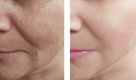 Του προσώπου ρυτίδες γυναικών πριν και μετά από τις διαδικασίες στοκ φωτογραφίες με δικαίωμα ελεύθερης χρήσης