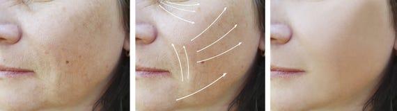 Του προσώπου υλικό πληρώσεως διαφοράς αποτελεσμάτων ρυτίδων γυναικών πριν και μετά από τις διαδικασίες στοκ εικόνα