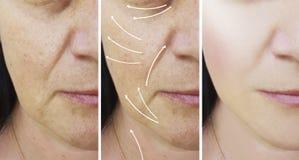 Του προσώπου υλικό πληρώσεως διαφοράς επίδρασης ανελκυστήρων ρυτίδων γυναικών πριν και μετά από τις διαδικασίες στοκ φωτογραφίες