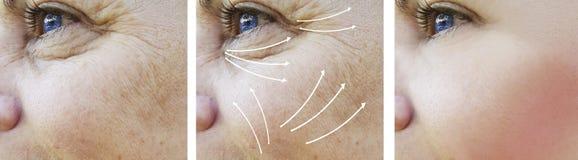 Του προσώπου υλικό πληρώσεως διαφοράς επίδρασης αποτελεσμάτων ρυτίδων γυναικών πριν και μετά από τις διαδικασίες στοκ εικόνες