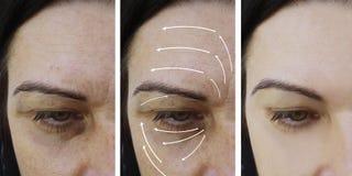 Του προσώπου cosmetology αποτελεσμάτων ρυτίδων γυναικών πριν και μετά από το removaltreatment διαδικασιών στοκ φωτογραφίες