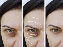 Του προσώπου cosmetology αποτελεσμάτων ρυτίδων γυναικών πριν και μετά από τις διαδικασίες στοκ φωτογραφία