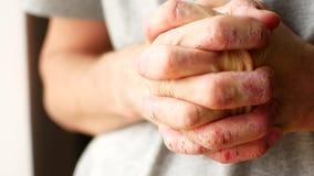 Το άτομο γρατσουνίζει τα χέρια του Πολύ itchy δάχτυλα, ψωρίαση φιλμ μικρού μήκους