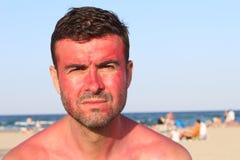 Το άτομο με τη σοβαρή έκφραση μετά από να πάρει μαύρισε από τον ήλιο Στοκ φωτογραφία με δικαίωμα ελεύθερης χρήσης