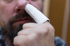 Το άτομο παίρνει με το τραυματισμένο δάχτυλο Στοκ Φωτογραφία