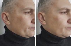 Το άτομο προσώπου ζαρώνει πριν και μετά από τη διαδικασία στοκ εικόνες