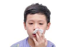 Το αγόρι σκουπίζει το αίμα από τη μύτη του από το έγγραφο ιστού Στοκ Εικόνες