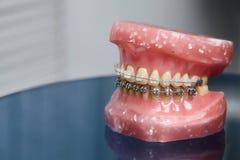 Το ανθρώπινο σαγόνι ή το πρότυπο δοντιών με το μέταλλο σύνδεσε με καλώδιο τα οδοντικά στηρίγματα στοκ εικόνα