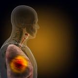 Το ανθρώπινο σώμα (όργανα) από τις ακτίνες X στο μαύρο υπόβαθρο ελεύθερη απεικόνιση δικαιώματος