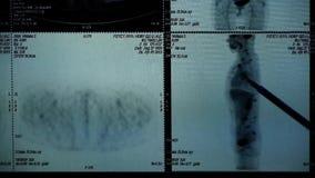 Το ανθρώπινο orage μελέτης γιατρών & το Pet-CT κόκκαλων ανιχνεύουν, ακτίνα X, μετάσταση καρκίνου απόθεμα βίντεο