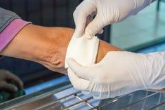 Το γδάρσιμο πληγώνει τον τραυματισμό βραχιόνων Στοκ φωτογραφίες με δικαίωμα ελεύθερης χρήσης