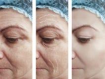 Το δέρμα γυναικών ζαρώνει την ιατρική αφαίρεσης πριν από τη διαφορά αναγέννησης μετά από cosmetology κολάζ την αντίθεση αναγέννησ στοκ φωτογραφίες με δικαίωμα ελεύθερης χρήσης