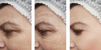 Το δέρμα γυναικών ζαρώνει την υπομονετική διαφορά αναγέννησης ιατρικής αφαίρεσης μετά από cosmetology κολάζ την αντίθεση αναγέννη στοκ φωτογραφίες με δικαίωμα ελεύθερης χρήσης