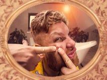 Το ενήλικο άτομο συμπιέζει το σπυράκι στο πρόσωπό του Στοκ Εικόνες
