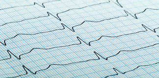 Το καρδιογράφημα της καρδιάς κτύπησε Στοκ Φωτογραφίες