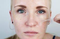Το κορίτσι αφαιρεί την ταινία μασκών από το πρόσωπο Η έννοια της αφαίρεσης του παλαιού ξηρού δέρματος, self-care στοκ φωτογραφίες