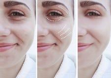 Το κορίτσι ζαρώνει τα μάτια πριν μετά από να ανυψώσει τις διαδικασίες επεξεργασίας επίδρασης διορθώσεων δερματολογίας στοκ εικόνες