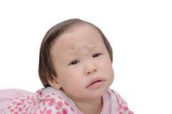 Το κορίτσι με το κουνούπι δαγκώνει το σημείο στο πρόσωπο Στοκ Εικόνες
