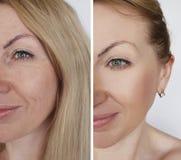 Το κορίτσι προσώπου ζαρώνει πριν και μετά από τις καλλυντικές διαδικασίες Στοκ φωτογραφία με δικαίωμα ελεύθερης χρήσης