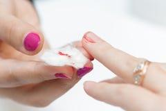 Το κορίτσι υπέστη ένα δάχτυλο περικοπών στο μανικιούρ Στοκ Φωτογραφία