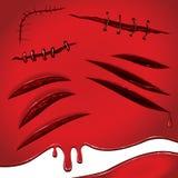 Το κόκκινο αίμα πληγώνει τα ραμμένα σημάδια απεικόνιση αποθεμάτων