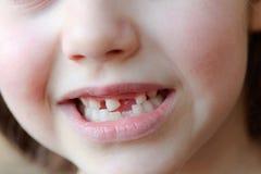 Το λατρευτό κορίτσι χαμογελά με την πτώση των πρώτων δοντιών μωρών Στοκ φωτογραφία με δικαίωμα ελεύθερης χρήσης