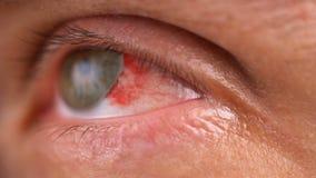 Το μάτι γεμίζουν με το αίμα γύρω από την ίριδα απόθεμα βίντεο