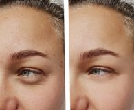 Το μάτι ζαρώνει τη νέα γυναίκα πριν και μετά από cosmetology κινηματογραφήσεων σε πρώτο πλάνο τις διαδικασίες στοκ φωτογραφία με δικαίωμα ελεύθερης χρήσης