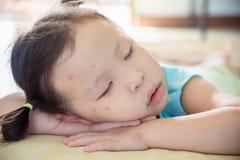 Το μικρό κορίτσι με το σημείο στον ύπνο προσώπου μετά από αρρωσταίνει Στοκ Εικόνες