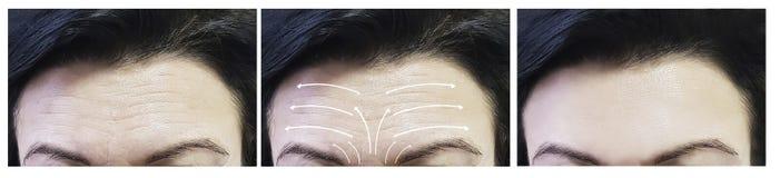 Το πρόσωπο γυναικών ζαρώνει πριν και μετά από τη διόρθωση διαδικασιών, σκλήρυνση δερμάτων βελών στοκ φωτογραφία