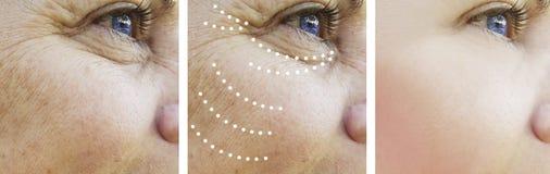 Το πρόσωπο γυναικών ζαρώνει πριν και μετά από τη διόρθωση επεξεργασίας στοκ φωτογραφία με δικαίωμα ελεύθερης χρήσης