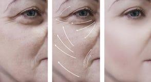 το πρόσωπο γυναικών ζαρώνει πριν και μετά από τη θεραπεία, διαδικασίες κολλαγόνων, βέλος στοκ φωτογραφία με δικαίωμα ελεύθερης χρήσης