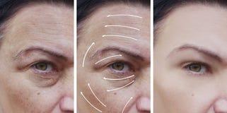 Το πρόσωπο γυναικών ζαρώνει την αντίθεση αναγέννησης διορθώσεων πριν και μετά από τις διαδικασίες, βέλος στοκ εικόνες με δικαίωμα ελεύθερης χρήσης