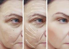 Το πρόσωπο γυναικών ζαρώνει την αντίθεση διορθώσεων πριν και μετά από τις διαδικασίες, βέλος στοκ εικόνα με δικαίωμα ελεύθερης χρήσης