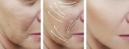 Το πρόσωπο γυναικών ζαρώνει την ώριμη αντίθεση αναγέννησης διορθώσεων πριν και μετά από τις διαδικασίες, βέλος στοκ εικόνα