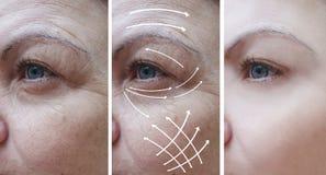 Το πρόσωπο γυναικών ζαρώνει τη διόρθωση πριν και μετά από τις διαδικασίες, βέλος στοκ φωτογραφία