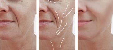 Το πρόσωπο δερμάτων γυναικών ζαρώνει τη διόρθωση αποτελεσμάτων επεξεργασίας γήρανσης επίδρασης πριν και μετά από τις διαδικασίες, στοκ εικόνα