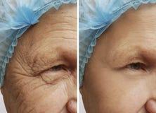 Το πρόσωπο ενός ηληκιωμένου ζαρώνει πριν και μετά από τις διαδικασίες χειρουργικών επεμβάσεων στοκ εικόνες με δικαίωμα ελεύθερης χρήσης