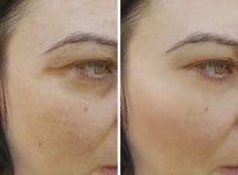 Το πρόσωπο ζαρώνει το μέτωπο πριν και μετά από τη διόρθωση θεραπείας στοκ εικόνα με δικαίωμα ελεύθερης χρήσης
