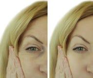 Το πρόσωπο ζαρώνει πριν και μετά από τη γυναίκα Στοκ εικόνες με δικαίωμα ελεύθερης χρήσης