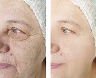Το πρόσωπο ζαρώνει την ηλικιωμένη διαφορά γυναικών πριν και μετά από την επεξεργασία αναζωογόνησης στοκ φωτογραφίες με δικαίωμα ελεύθερης χρήσης