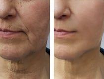 Το πρόσωπο μιας ηλικιωμένης γυναίκας ζαρώνει πριν και μετά στοκ φωτογραφία με δικαίωμα ελεύθερης χρήσης