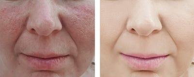 Το πρόσωπο μιας ηλικιωμένης γυναίκας ζαρώνει την επεξεργασία γήρανσης πριν και μετά από τις διαδικασίες στοκ εικόνες