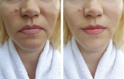 Το πρόσωπο της ηλικιωμένης γυναίκας ζαρώνει τη θεραπεία θεραπείας αναγέννησης δερματολογίας κολλαγόνων ανύψωσης πριν και μετά από στοκ φωτογραφία με δικαίωμα ελεύθερης χρήσης
